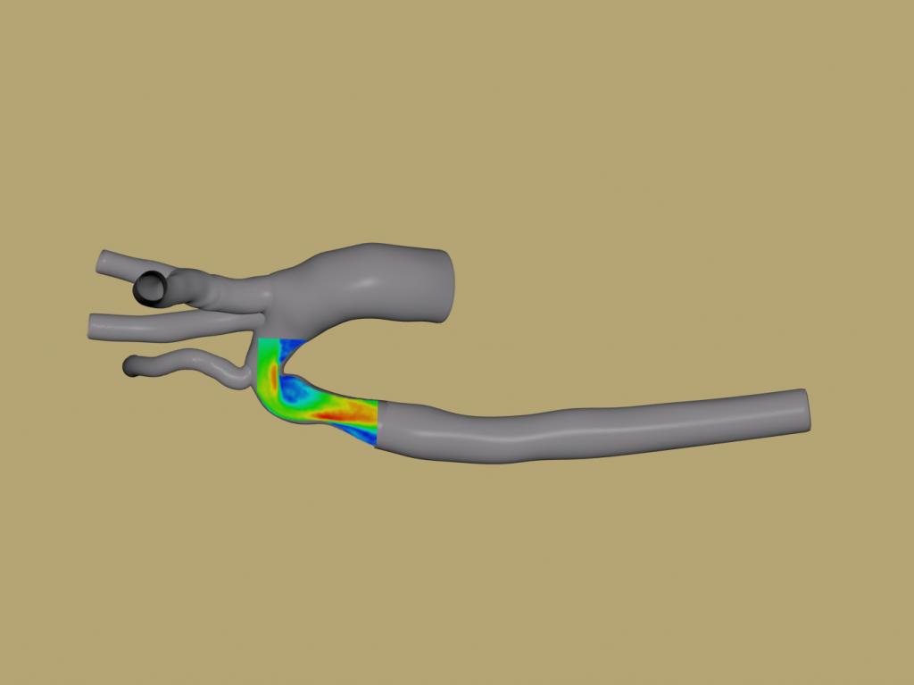 Experimental fluid velocity measurements of three-dimensional printed arterial geometry, overlaid on simulation geometry.