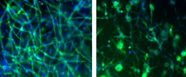 Figure 1. vascular-inducing bioinks allow for the self-assembly of native structures. fibrin-based bioinks were conducive and inductive of vasculature formation using umbilical vein endothelial cells (left) and brain microvascular endothelial cells (right).