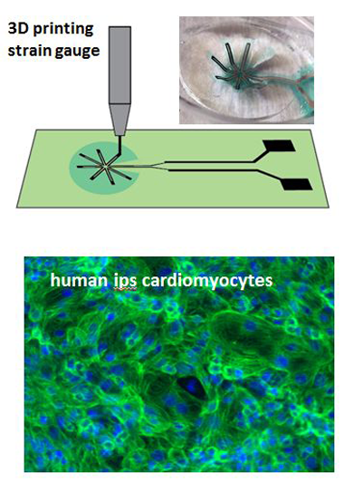 Three-dimensional printing of a micro-strain gauge on a polydimethylsiloxane thin film (top), and image of a single peacock device (inset). a fluorescent image of human induced pluripotent stem (ips) cell-derived cardiomyocytes (cardiac muscle cells) grown on the peacock platform (bottom).