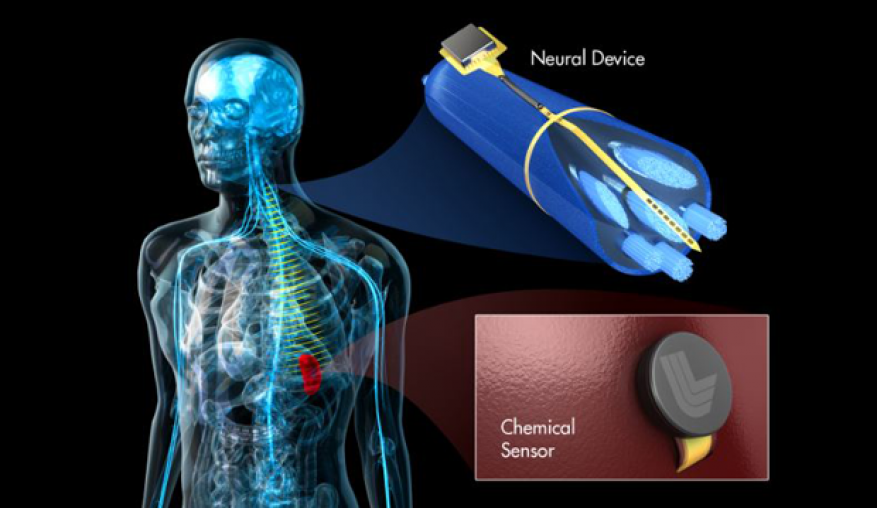Conceptual image of a complete neurostimulator and sensing system. this work focuses on developing a prototype of an implantable device for peripheral nerve stimulation. future work will be to combine the device with other on-going laboratory work developing implantable chemical sensors.